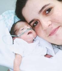 image014 Bebes que nacen a las 24 o 25 Semanas de Gestación
