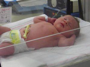 P83 300x225 Pérdida de calor del recién nacido